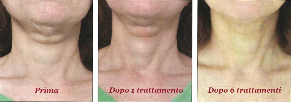trattamento collo